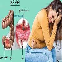 التهاب الرتج | ماهو التهاب الرتج واسبابه