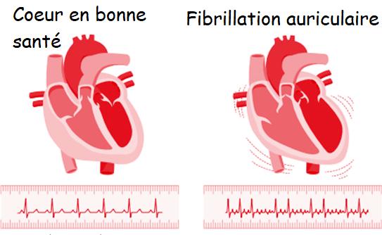 Fibrillation auriculaire : une arythmie fréquente et silencieuse qui augmente le risque d'AVC
