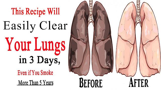 3 दिन में फेफड़ों को साफ करके धूम्रपान के प्रभाव को ख़त्म करें | Effective Lung Cleanse For Smokers