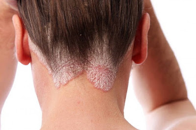 how to remove dandruff permanently from hair home remedies