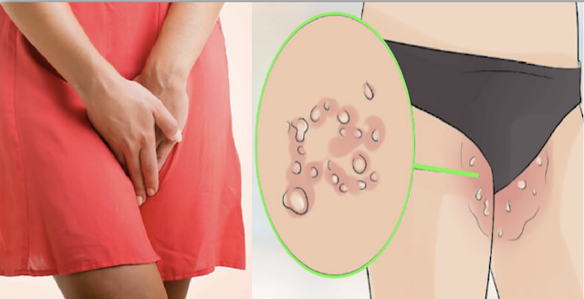 All Women Should Watch Out For These Itchy, Irritation And  Burning Bumps Inside Their Private Areas