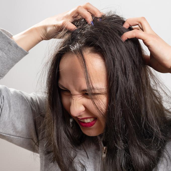 Mengenali penyebab ketombe dan kulit kepala kering yang rentan terjadi pada perempuan