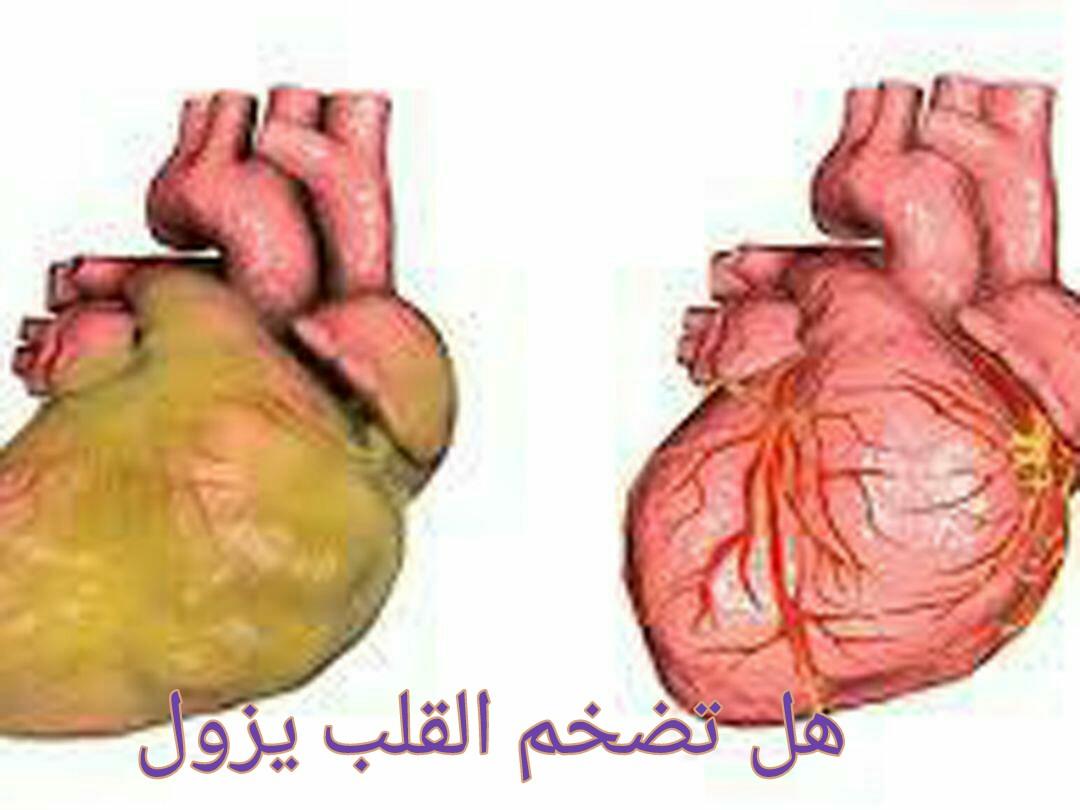 هل تضخم القلب يزول