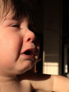 aufgerissene lippen bei kindern