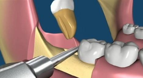 Emergency dentist Parramatta