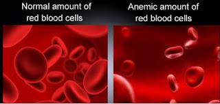 Gejala yang ditimbulkan akibat kadar hemoglobin rendah