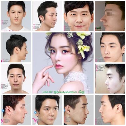 รีวิวศัลยกรรมเกาหลี เอเจนซี่ศัลยกรรมเกาหลีBSK : ผู้ชาย..อย่าหยุดหล่อ (ศัลยกรรมกับผู้ชาย),ศัลยกรรมเกา