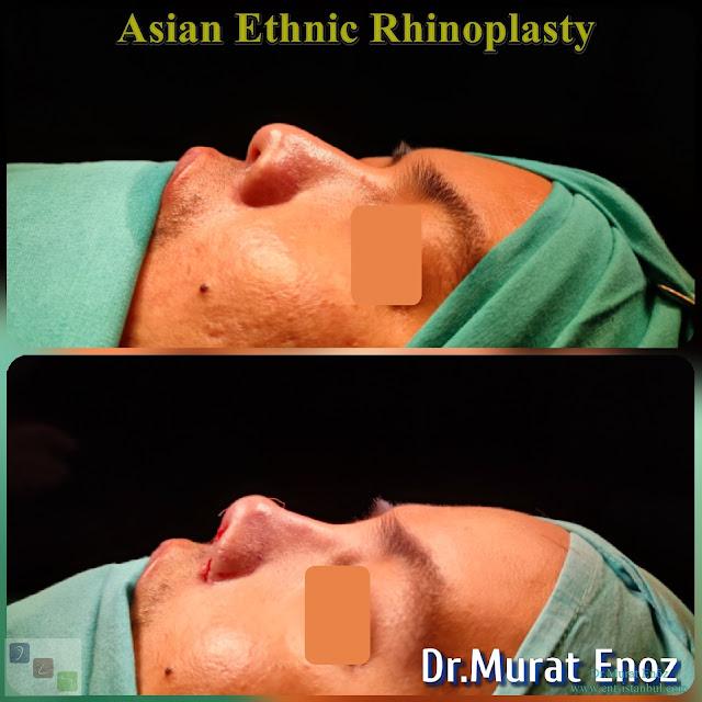 Asian Ethnic Nose Job - Asian Ethnic Rhinoplasty in Istanbul