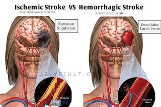 Ada dua jenis utama stroke