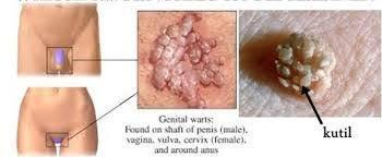 Gambar Obat Penyakit Kutil Kelamin Pada Pria