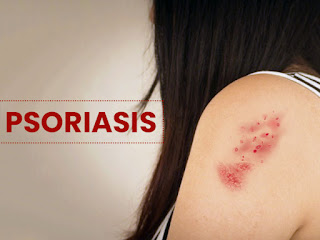 What is Psoriasis and there symptom