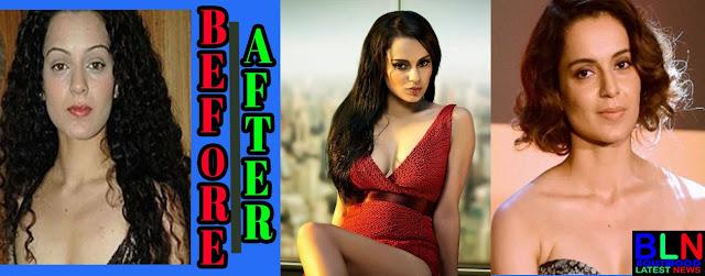 KANGANA RANAUT Bollywood Actresses Before and After Plastic Surgery