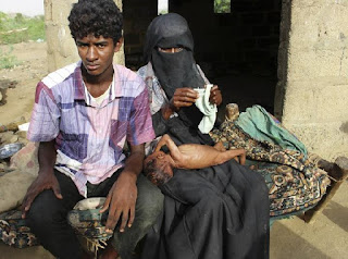 Dampak Pemberontakan Syiah Houthi, 100 Warga Yaman Tewas & Terluka Tiap Pekan