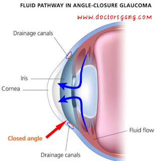 Fluid pathway in closure angel glaucoma