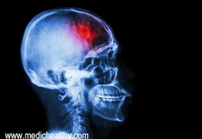 Citicoline and Piracetam in Ischemic Stroke and Head Injuries