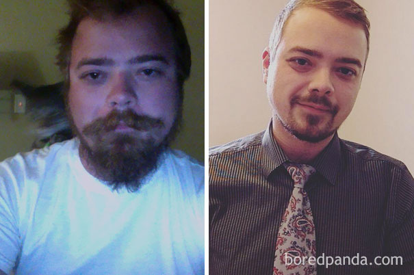 10+ Before-And-After Pics Show What Happens When You Stop Drinking - 1.5 Years Sober