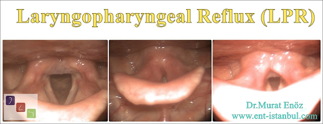 Laryngopharyngeal Reflux (LPR) or Extraesophageal Reflux Disease