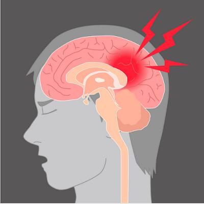 brain lesion treatment chennai