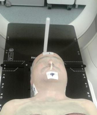 masca radioterapie