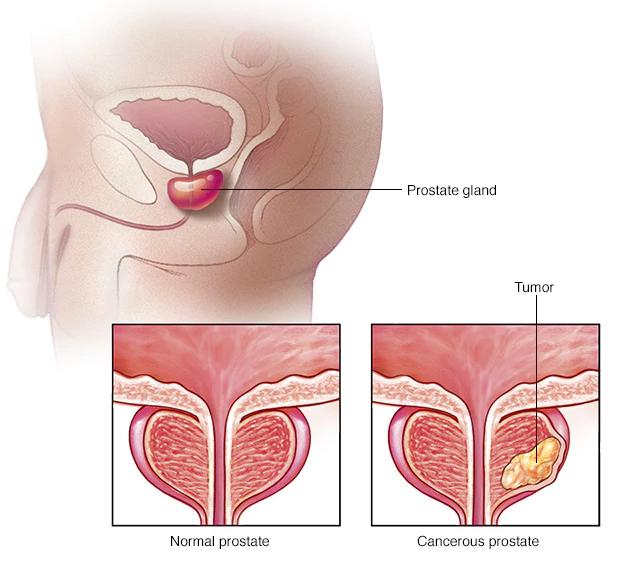 معلومات طبية عن سرطان البروستاتا