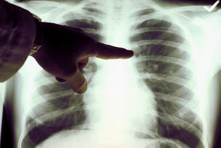 3 Ways to Treat Lung Cancer Medically
