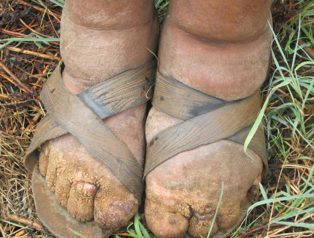 Skin Disease Lymphatic Filariasis