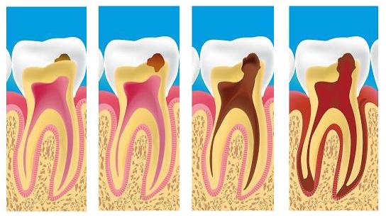 Cara Menghilangkan Sakit Gigi Berlubang Dengan MudahBerlubang
