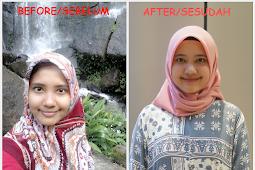Pengalaman 6 Tahun Pakai Skincare Wardah