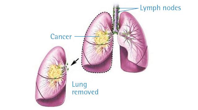 Penyebab, Gejala, Pencegahan, dan Cara Pengobatan Kanker Paru-Paru
