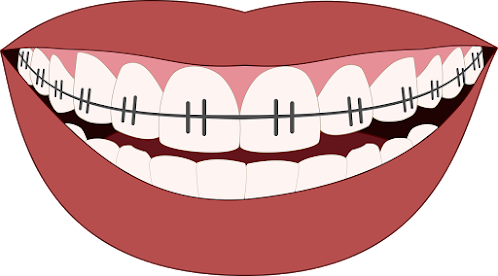 What Are The Different Types of Braces And Their Costs
