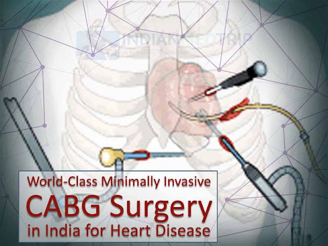 World-Class Minimally Invasive CABG Surgery in India for Heart Disease