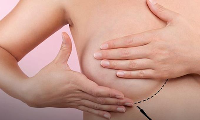 Câncer de mama supera o de pulmão e já é o mais comum no mundo