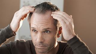 طرق علاج تساقط الشعر عند الرجال