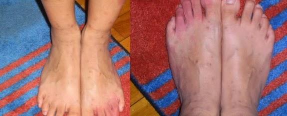 piqûres de puces sur les pieds