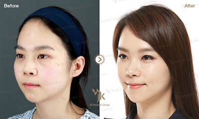 ринопластика в корее, преподнятие спинки носа