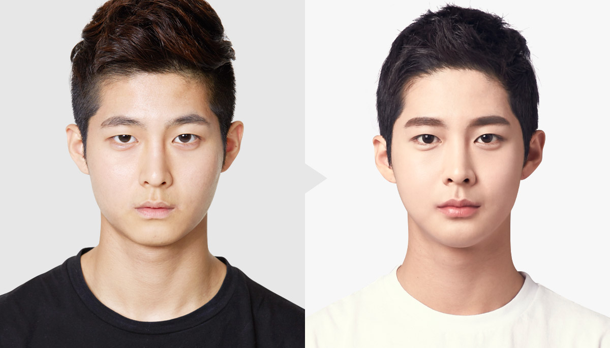 Image Gallery korean male plastic surgery