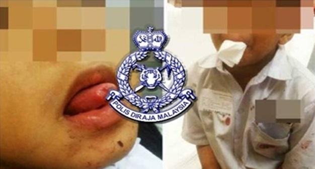 Kes Murid Potong Lidah Sendiri Selesai, Pihak Polis Keluarkan Kenyataan Yang MENGEJUTKAN Orang Ramai