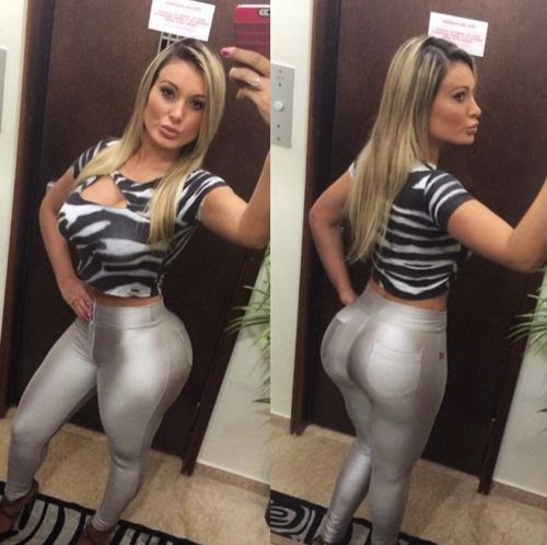 Andressa Urach is in a coma | After beauty OP: Po-model's life is in danger
