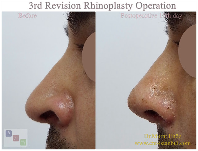 3rd Revision Nose Job in Men Istanbul, Tertirary revision rhinoplasty in Turkey, Third revision nose aesthetic surgery with rib cartilage