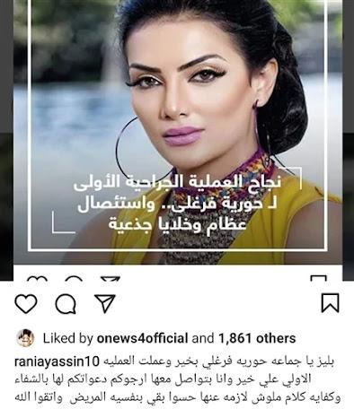 أخبار مصر: حورية فرغلي تطمئن جمهورها بعد خضوعها لأول عملية في أنفها