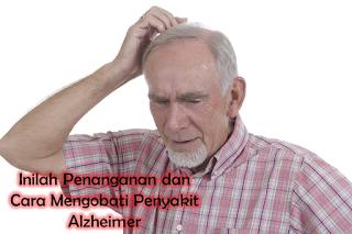 Inilah Penanganan dan Cara Mengobati Penyakit Alzheimer