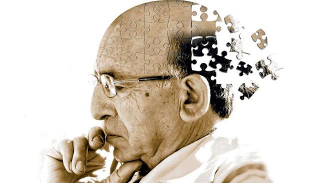 Berikut Empat Jenis Demensia Yang Sebaiknya Kita Tahu