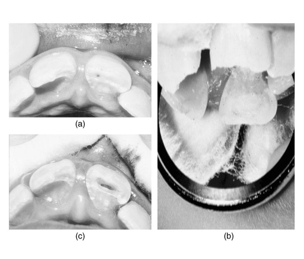 Pulpotomy