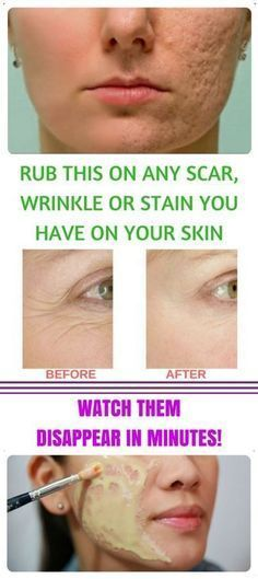 RUB THIS ON ANY SCAR, WRINKLE OR STAIN YOU HAVE ON YOUR SKIN
