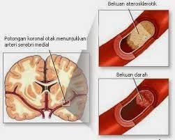 Obat Stroke Iskemik