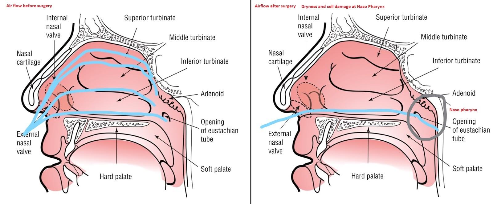 bakre näsblödning åtgärder