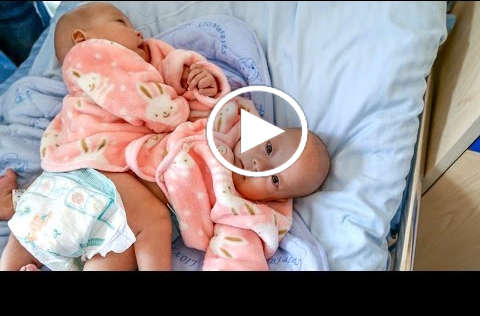 conjoined twins the problems Twin issues being a twin creates special dilemmas for parents of twins and for twins themselves twins can have emotional problems separating from one another when.