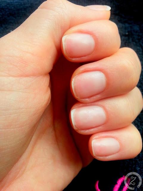 paznokcie po zdjeciu lakieru hybrydowego