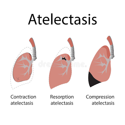 atelectasis causes and treatment