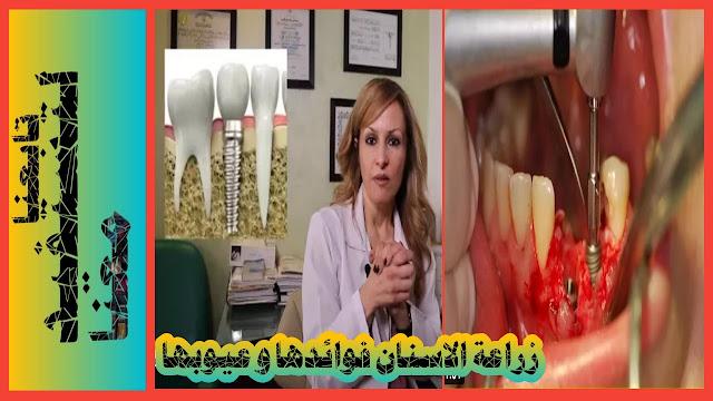 تجربتي مع زراعة الاسنان الفورية، عملية زراعة الاسنان، تكلفة زراعة الاسنان في الإمارات في الشارقة و اسعارها،عيادة زراعة الاسنان في دبي و فوائدها،